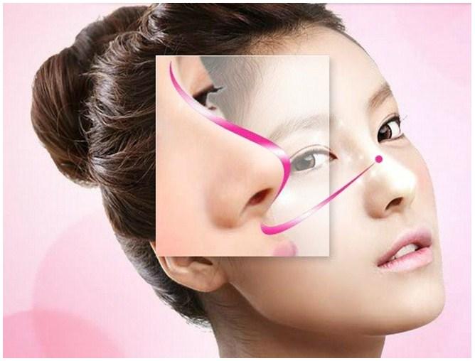 các phương pháp nâng mũi phổ biến hiện nay