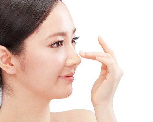 Cách chăm sóc mũi đúng cách sau nâng mũi S line - nangmuislinedep.com.vn