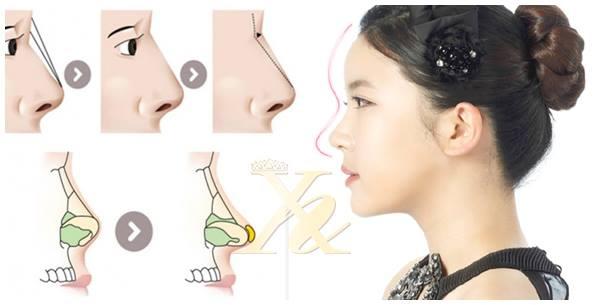 Nâng mũi cấu trúc có duy trì được vĩnh viễn không? - nangmuislinedep.com.vn