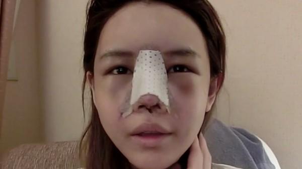nâng mũi có bị kéo mắt không