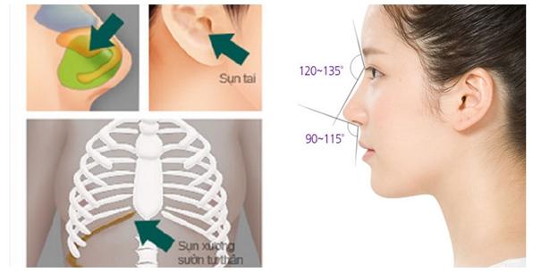 so sánh nâng mũi sụn tự thân và sụn nhân tạo