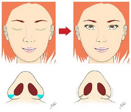 Cách thu gọn cánh mũi