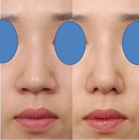 nâng mũi có giúp thu gọn mũi không