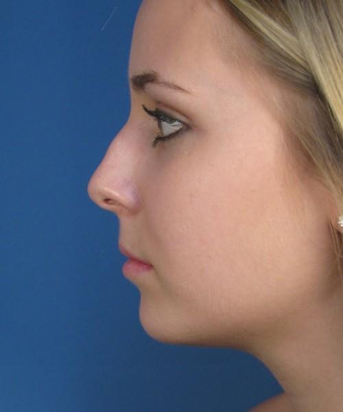Sửa mũi gồ - Giải pháp hoàn hảo giải quyết nỗi lo mũi xấu