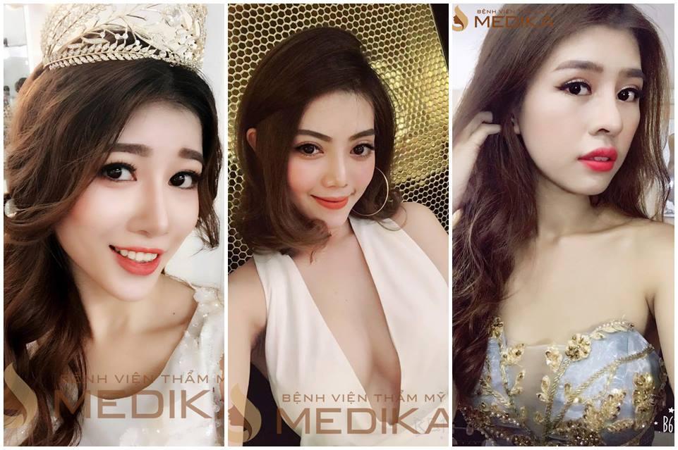 Các hot girl đổi đời nhờ phẫu thuật nâng mũi - nangmuislinedep.com.vn