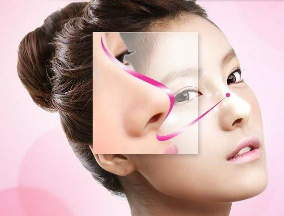 Nâng mũi S line - Dáng mũi đẹp tự nhiên chuẩn Hàn - nangmuislinedep.com.vn