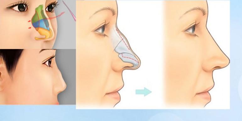 sửa mũi gồ