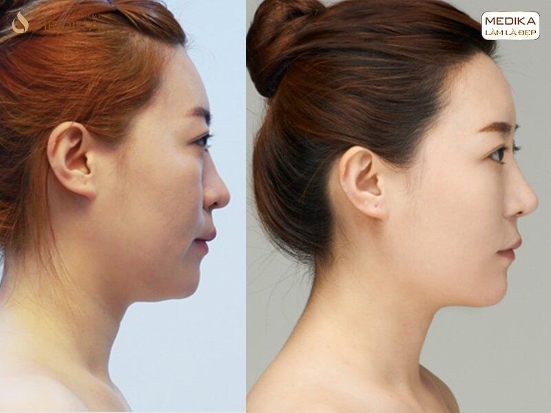 Nâng mũi sụn tự thân sử dụng những loại sụn gì bạn đã biết ở nangmuislinedep.com.vn?