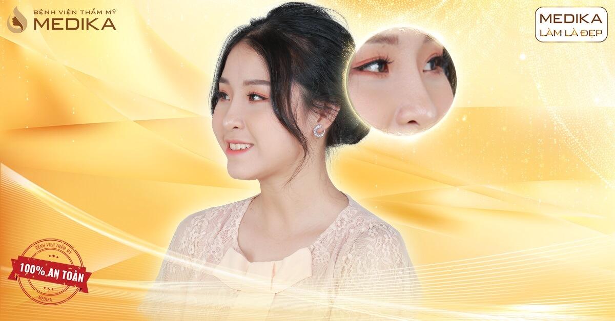 Giải đáp những thắc mắc về sụn khi thực hiện nâng mũi sụn tự thân - Ở nangmuislinedep.com.vn