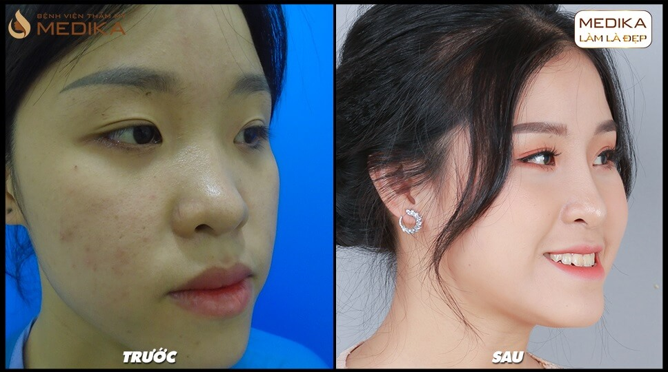 Nâng mũi L Line - nangmuislinedep.com.vn