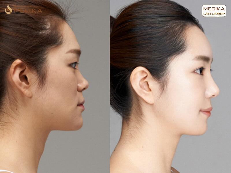 Nâng mũi bằng sụn tự thân tại nangmuislinedep.com.vn
