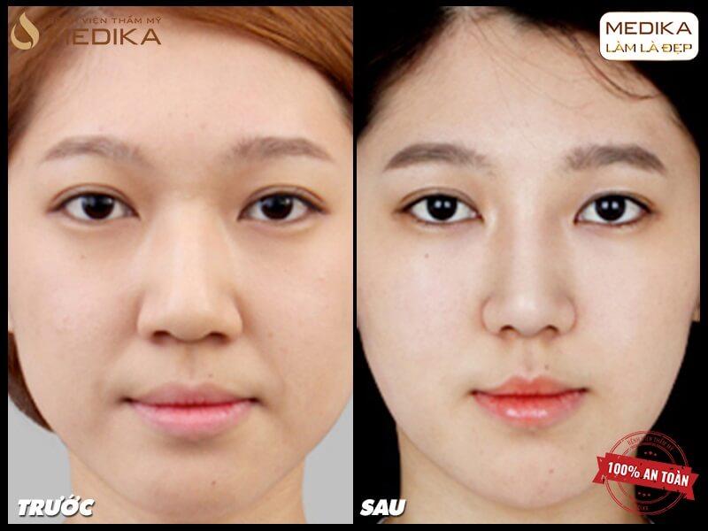 Thu nhỏ đầu mũi cải thiện chiếc mũi quá cỡ - Tại nangmuislinedep.com.vn