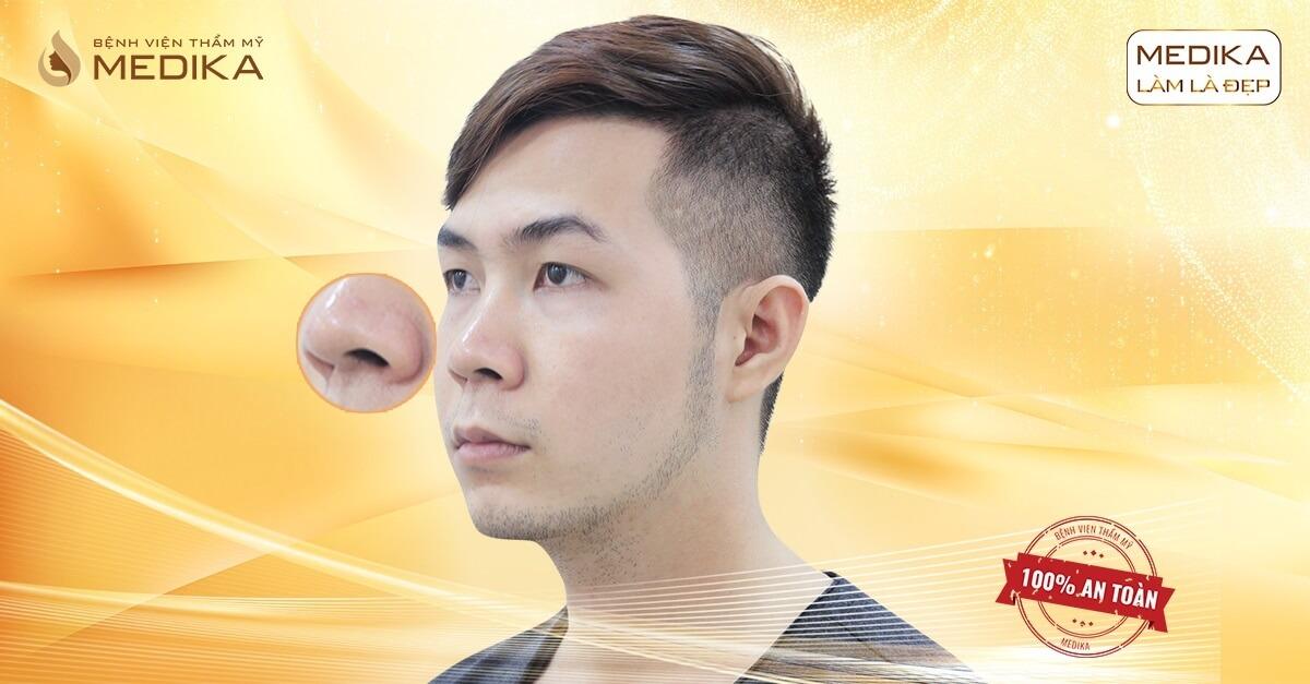 Lưu ý quan trọng khi thu gọn cánh mũi - Tại nangmuislinedep.com.vn