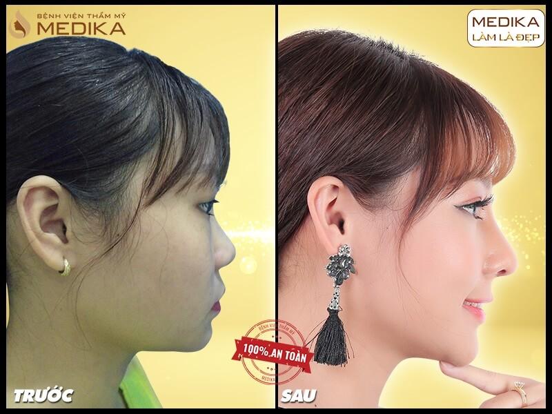 Sụn tự thân có tương khắc với sụn nhân tạo khi nâng mũi sụn tự thân? - Ở nangmuislinedep.com.vn