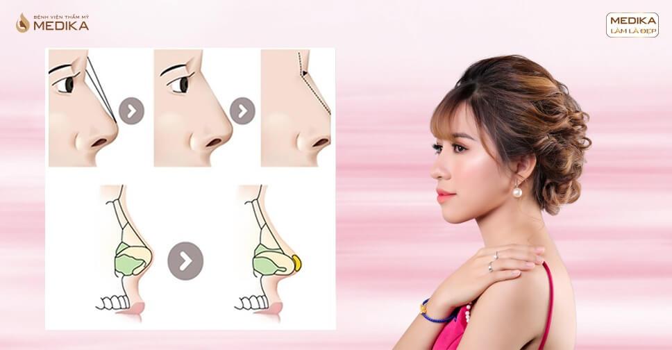 Giải pháp phẫu thuật nâng mũi bằng sụn tự thân an toàn nhất hiện nay - Ở nangmuislinedep.com.vn