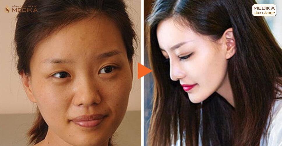 Kinh nghiệm đi phẫu thuật nâng mũi cấu trúc S line tại nangmuislinedep.com.vn