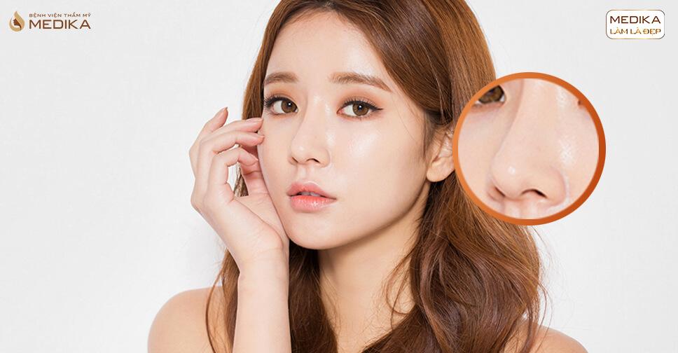 Nâng mũi sụn tự thân và những nỗi niềm lo lắng của các chị em ở nangmuislinedep.com.vn