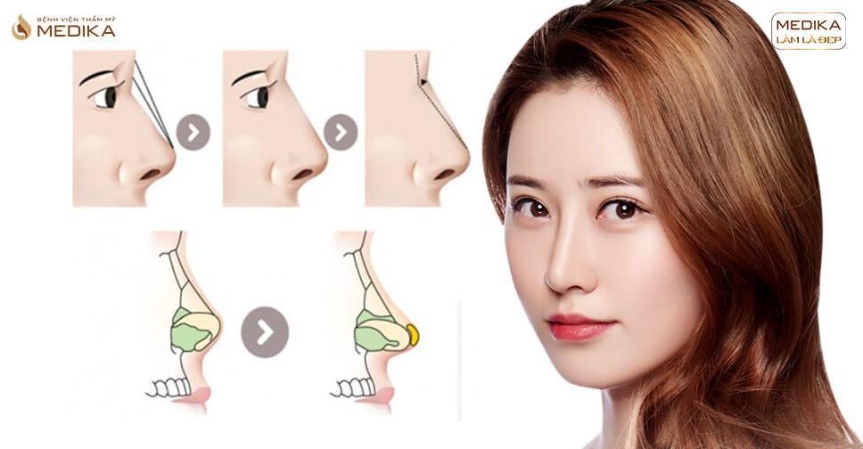 Nâng mũi sụn tự thân và những nỗi niềm lo lắng của các chị em tại nangmuislinedep.com.vn