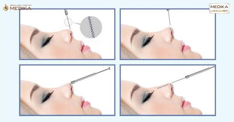 Nâng mũi bằng chỉ - Tại nangmuislinedep.com.vn