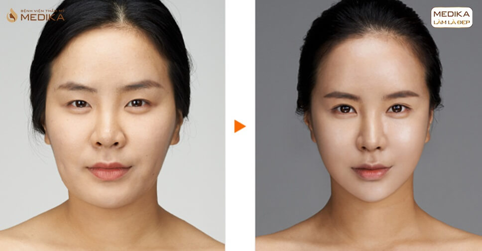 Bật mí cách thu gọn cánh mũi không phẫu thuật hiệu quả tối ưu - Ở nangmuislinedep.com.vn