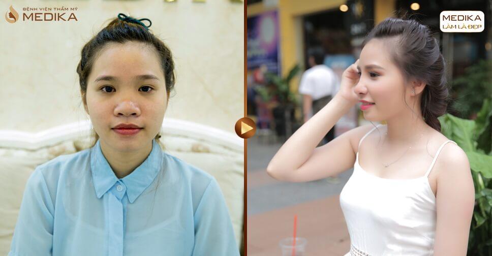 Chia sẻ về phương pháp thu nhỏ đầu mũi - Ở nangmuislinedep.com.vn