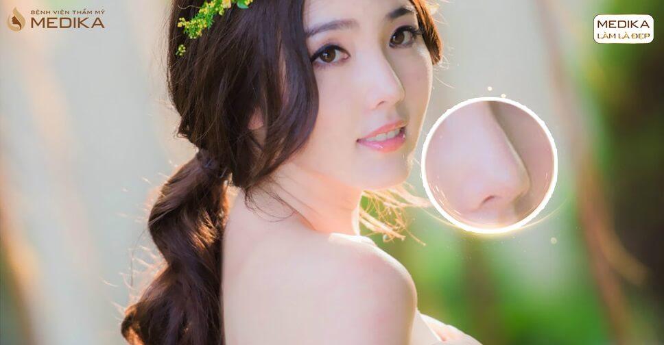 Chia sẻ về phương pháp thu nhỏ đầu mũi - Tại nangmuislinedep.com.vn