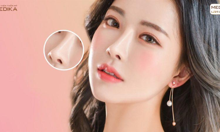 Điểm khác biệt khiến nâng mũi cấu trúc được ưa chuộng - Tại nangmuislinedep.com.vn