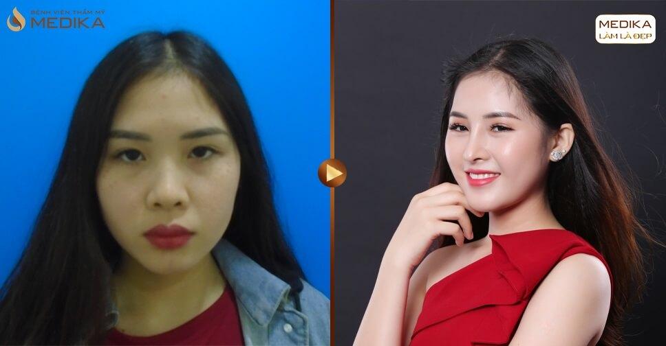 Nâng mũi bọc sụn khắc phục ngay nhược điểm dáng mũi thấp tẹt - Tại nangmuislinedep.com.vn