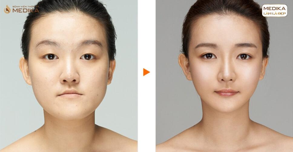 Thu nhỏ đầu mũi có bị ảnh hưởng đến sức khỏe? - Ở nangmuislinedep.com.vn