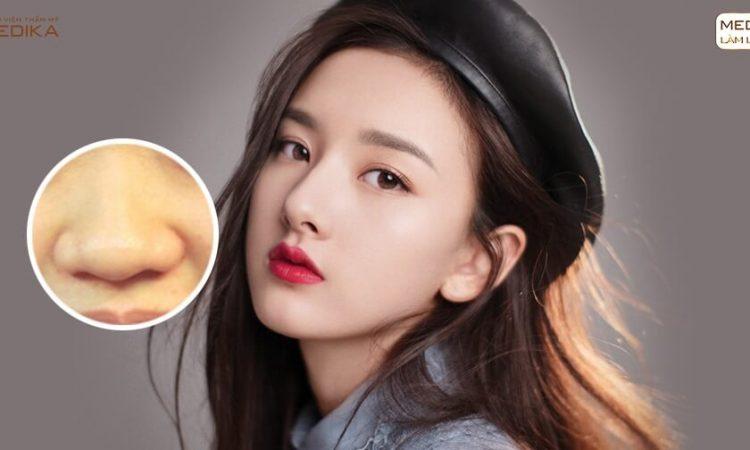 Dáng mũi chuẩn tỷ lệ vàng nhờ phương pháp thu gọn cánh mũi - Tại nangmuislinedep.com.vn