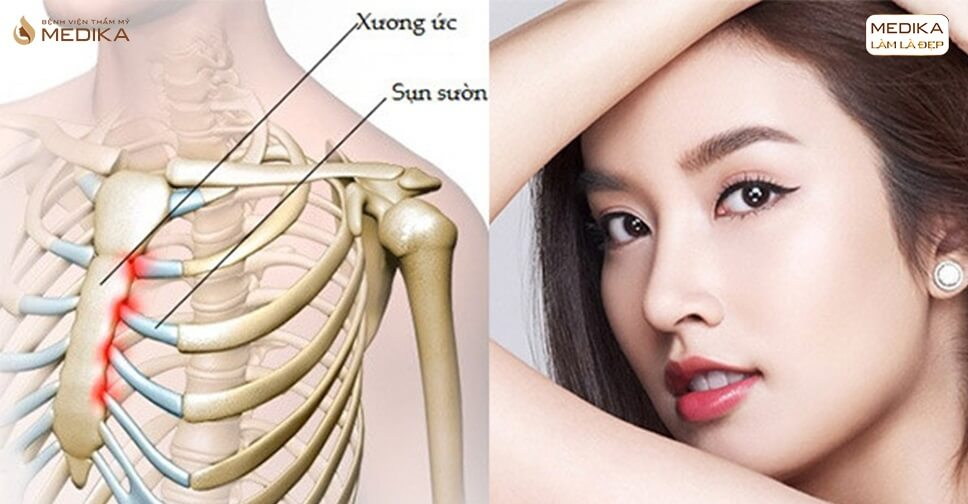 Nâng mũi sụn sườn có phải giải pháp cuối cùng bạn nên lựa chọn? - Ở nangmuislinedep.com.vn