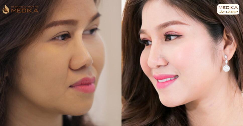 Nâng mũi sụn sườn có phải là sự lựa chọn cuối cùng khi thẩm mỹ mũi? - Ở nangmuislinedep.com.vn