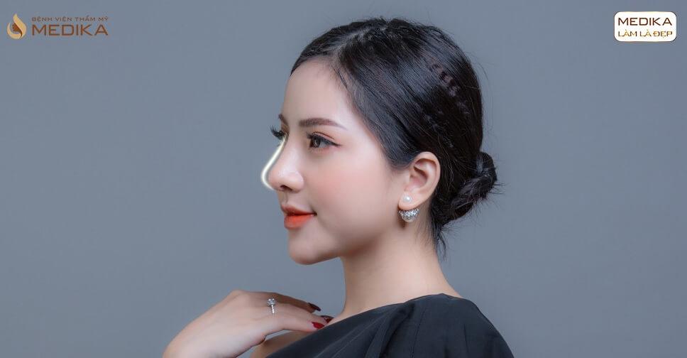 Nâng mũi sụn sườn có phải là sự lựa chọn cuối cùng khi thẩm mỹ mũi? -Tại nangmuislinedep.com.vn