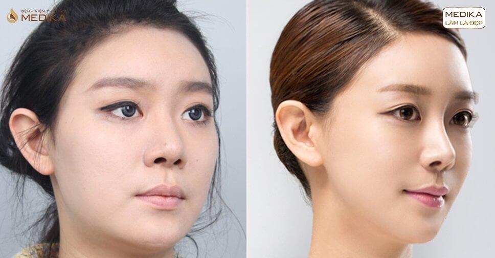Nâng mũi sụn tự thân xu hướng tương lai trong năm 2020 - Ở nangmuislinedep.com.vn