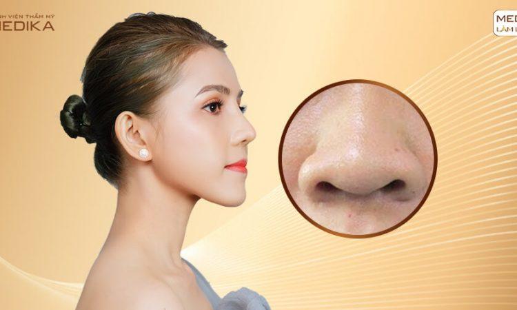 Thu nhỏ đầu mũi có ảnh hưởng đến chức năng mũi? - Tại nangmuislinedep.com.vn