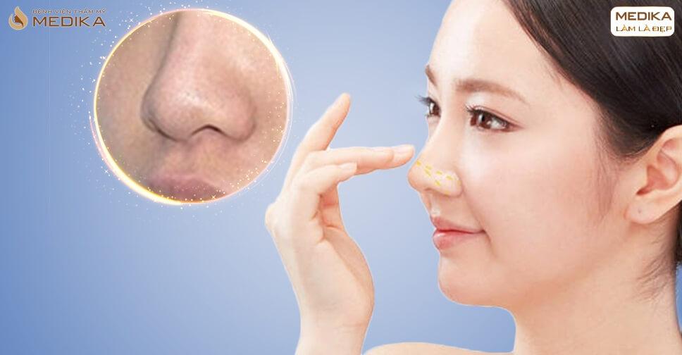 Thu nhỏ đầu mũi và những cảnh báo trực tiếp từ chuyên gia - Tại nangmuislinedep.com.vn
