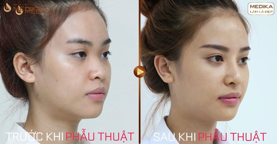 Có nên nâng mũi sụn tự thân hay không? - Tại nangmuislinedep.com.vn