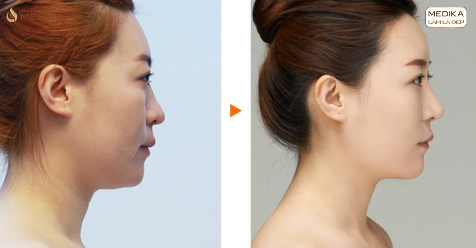 Mũi đẹp mọi góc nhìn nhờ nâng mũi sụn tự thân - MEDIKA.vn