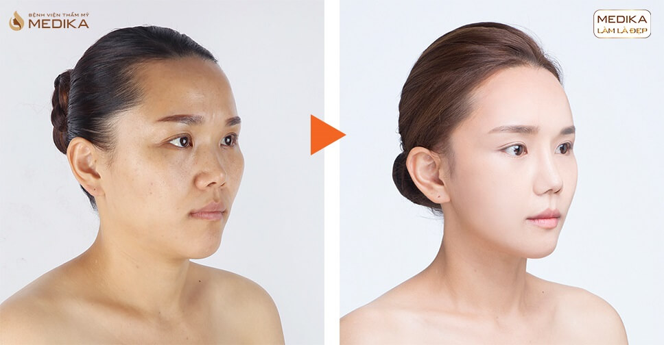 Nâng mũi sụn sườn có nên ưu tiên với người chưa từng nâng mũi - Ở nangmuislinedep.com.vn