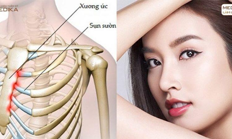 Nâng mũi sụn sườn có nên ưu tiên với người chưa từng nâng mũi - Tại nangmuislinedep.com.vn