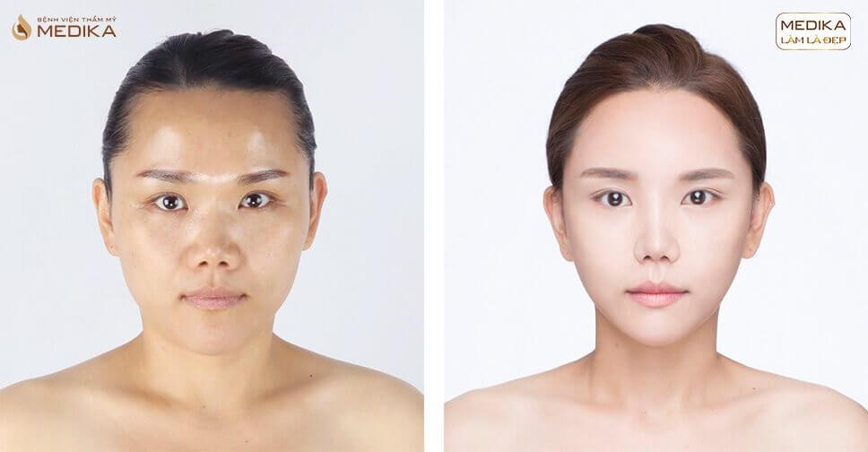 Hình ảnh sau khi thu nhỏ đầu mũi có nguy hiểm? - Nangmuislinedep.com.vn