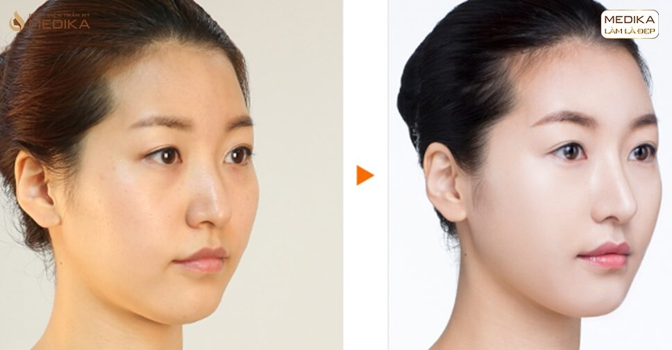 Lột xác chiếc mũi tẹt nhờ nâng mũi S line - Ở nangmuislinedep.com.vn