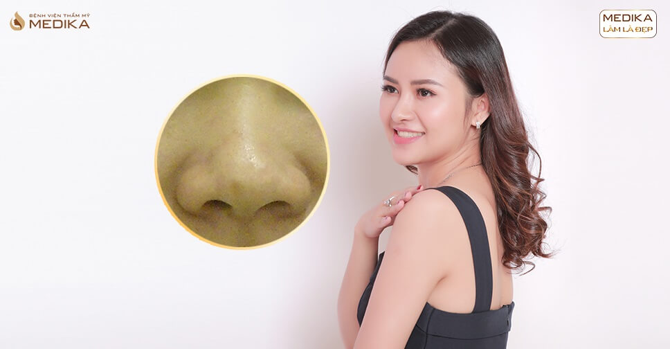 Nâng mũi cấu trúc cho người lần đầu thẩm mỹ nên hay không? - Tại Nangmuislinedep.com.vn