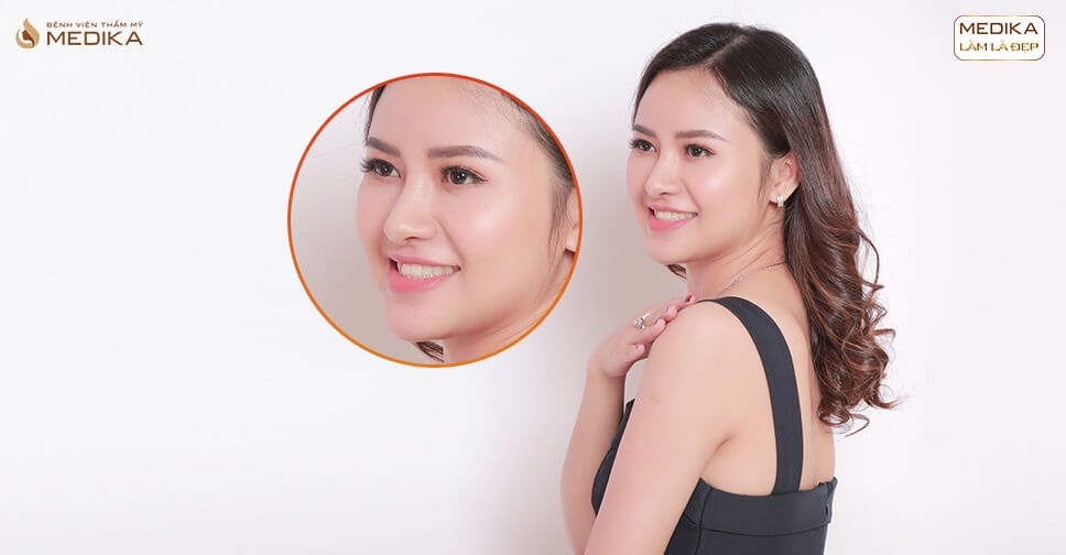 Nên nâng mũi sụn tự thân với sụn nhân tạo hay sụn tự thân hoàn toàn? - Ở nangmuislinedep.com.vn