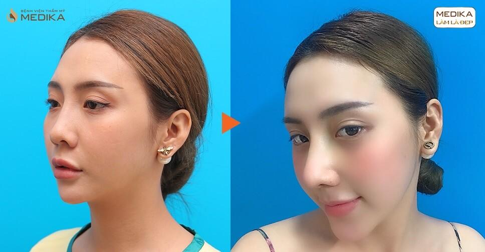 Tạm biệt chiếc mũi nhiều khuyết điểm nhờ giải pháp nâng mũi cấu trúc - Ở nangmuislinedep.com.vn