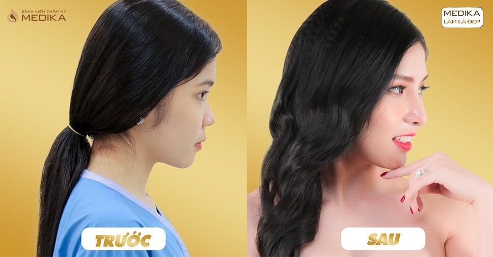 Trường hợp nào thực sự cần thiết nâng mũi sụn sườn? - Ở nangmuislinedep.com.vn