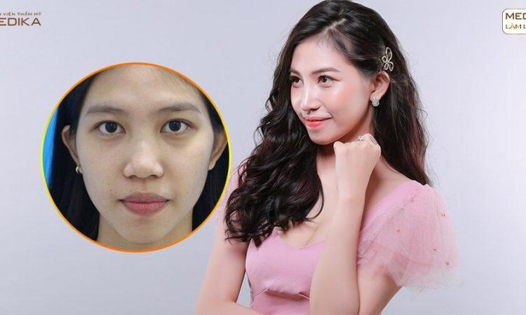 Tư vấn thu gọn cánh mũi an toàn hiệu quả từ chuyên gia MEDIKA - Tại nangmuislinedep.com.vn