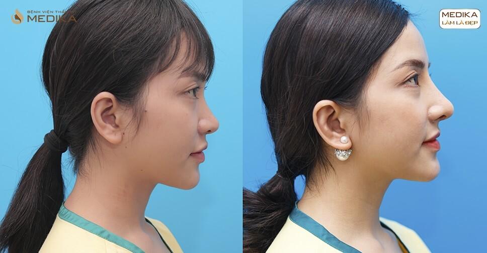 Ưu điểm của phương pháp nâng mũi sụn sườn - Tại nangmuislinedep.com.vn