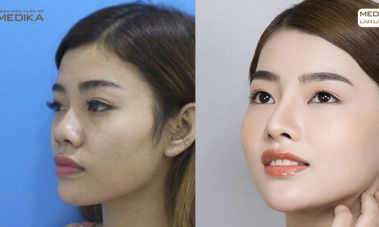 Bỏ túi bí quyết nâng mũi sụn sườn an toàn và hiệu quả - Tại Nangmuislinedep.com.vn