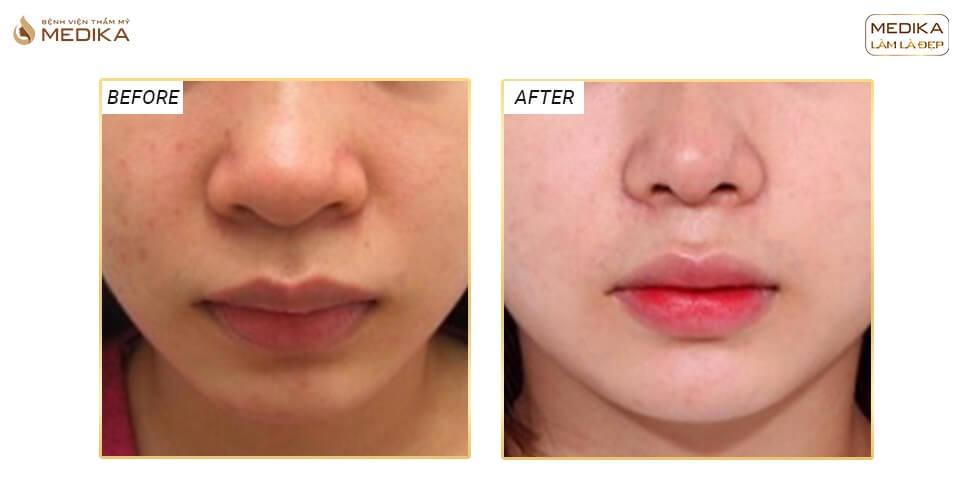 Cắt cánh mũi có gây nguy hiểm đến sức khỏe? - Tại nangmuislinedep.com.vn